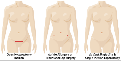 Hysterectomy Inscision Comparison Single Site